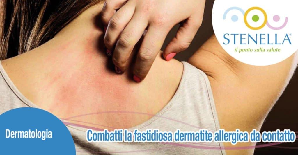 Combatti la fastidiosa dermatite allergica da contatto